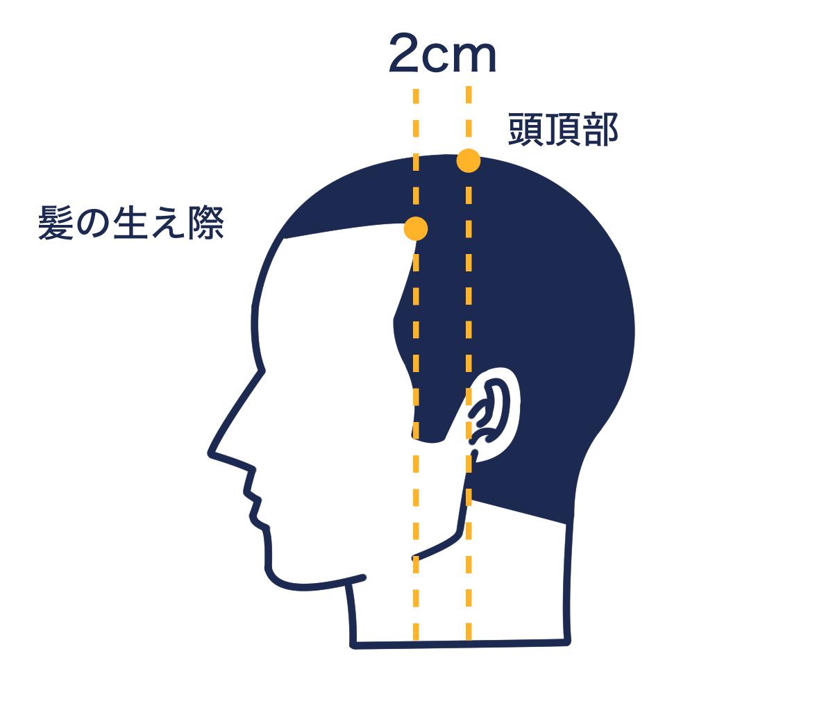 【症状から探す】M字型に進行する脱毛症状の原因