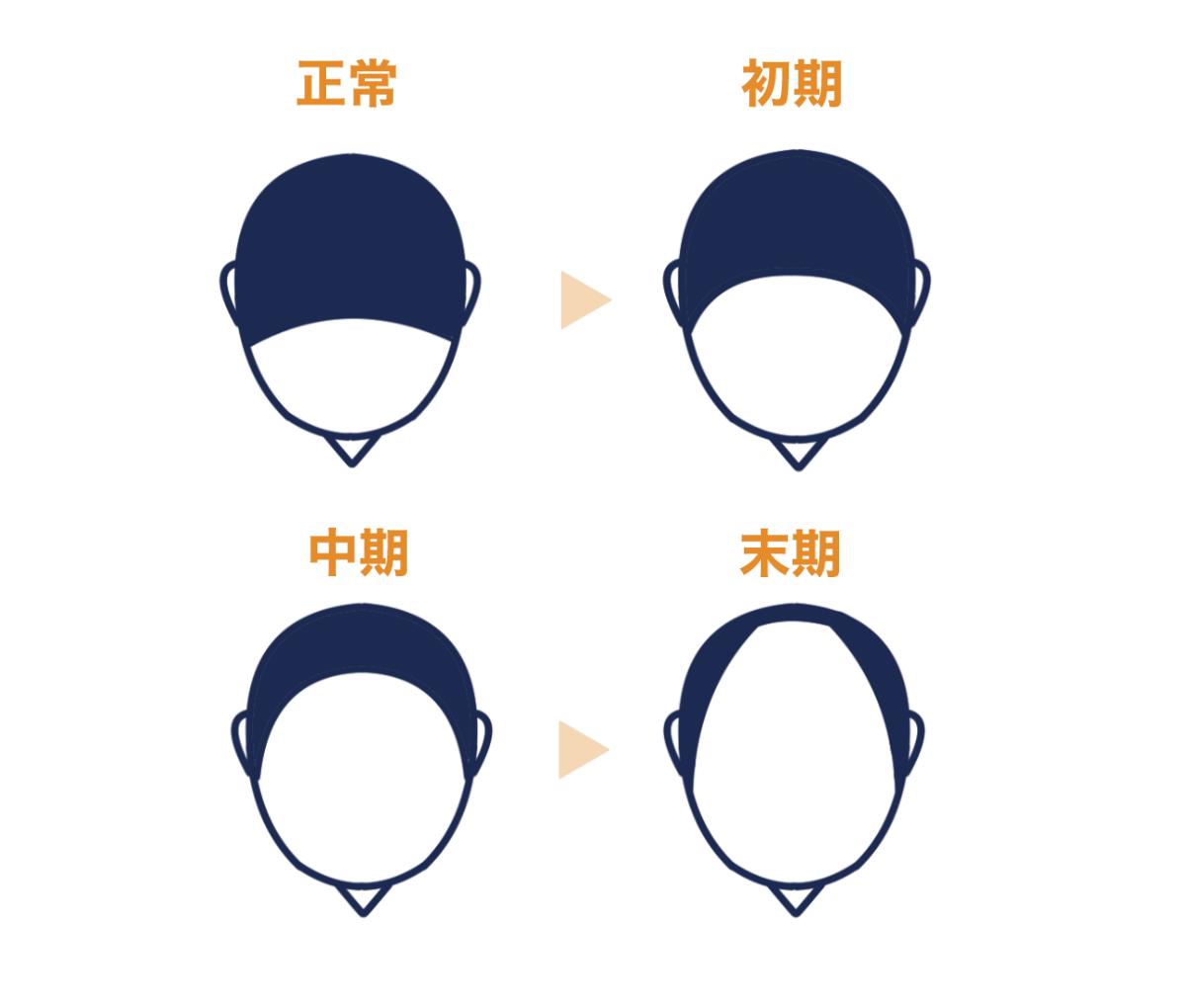 【症状から探す】前頭部から進行する脱毛症状の原因