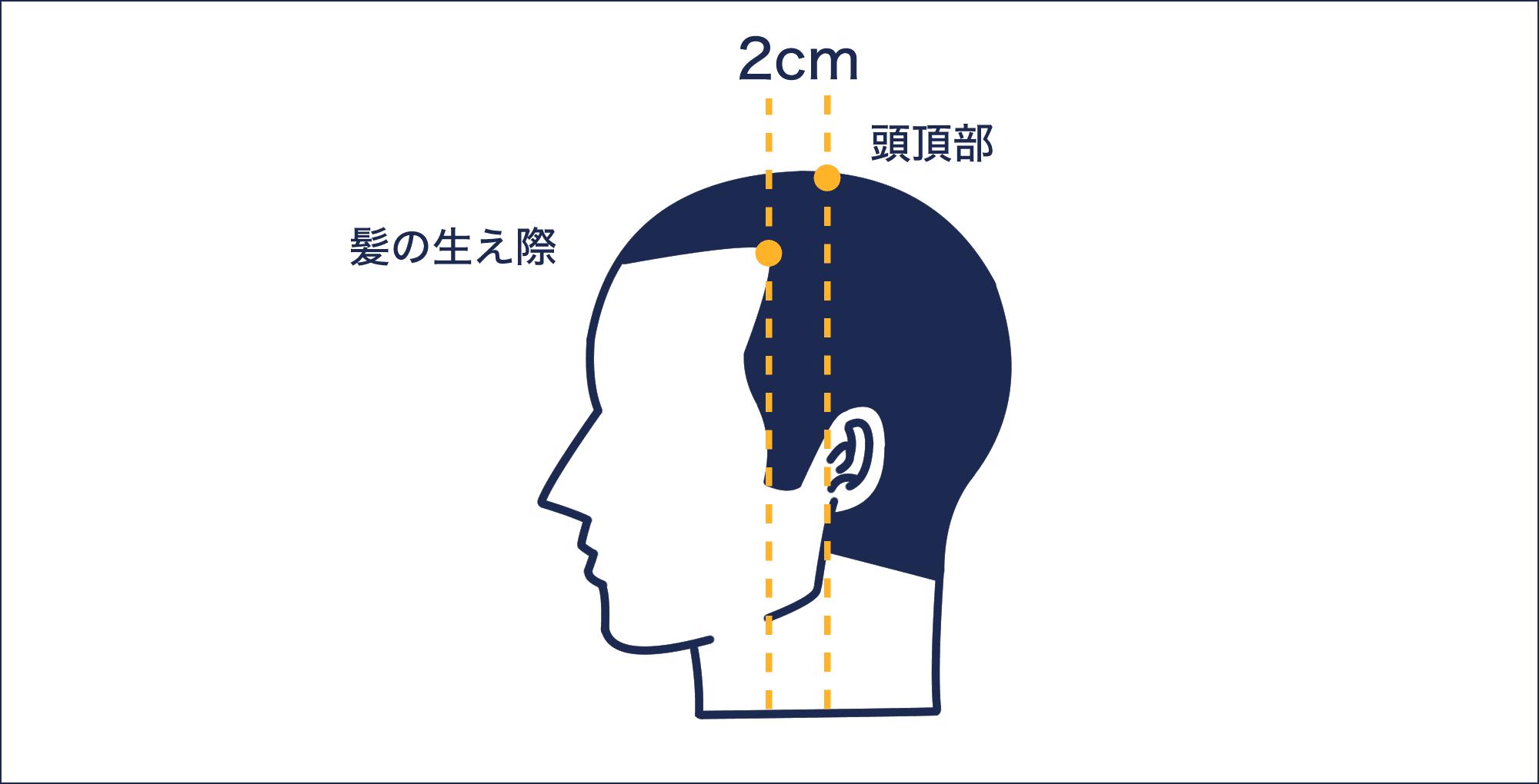 M字型に進行する脱毛症状の原因【症状から探す】