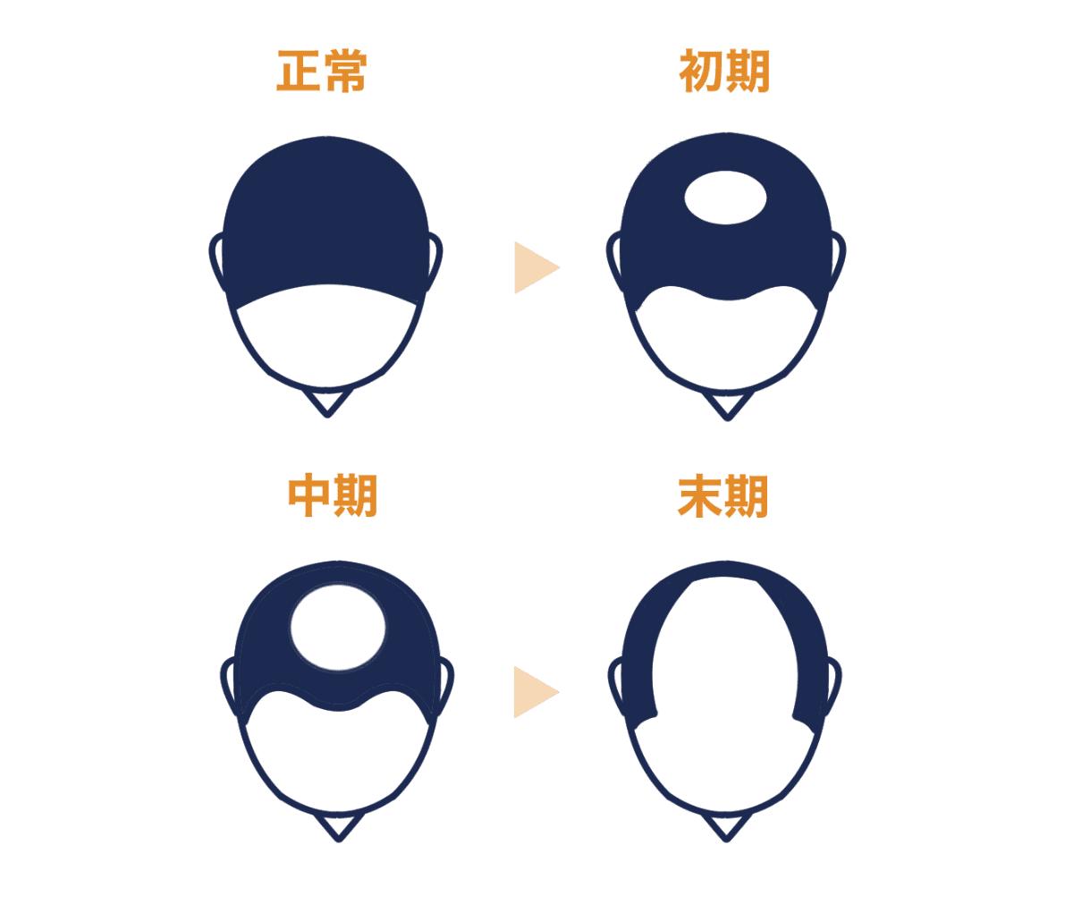 頭頂部から進行する脱毛症状の原因【症状から探す】